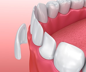 Portland Cosmetic Dentist animation of porcelain veneer placement