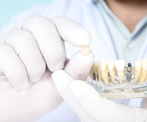 dentist holding a model of a mouth with dental implants