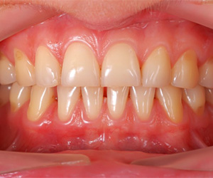 A mouth with mild periodontitis